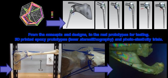 Example of students' developments linked to a sternum-rib and shoulder prostheses.